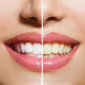 Whitening Before and After_preview-1